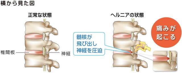 腰椎椎間板ヘルニアの手術方法