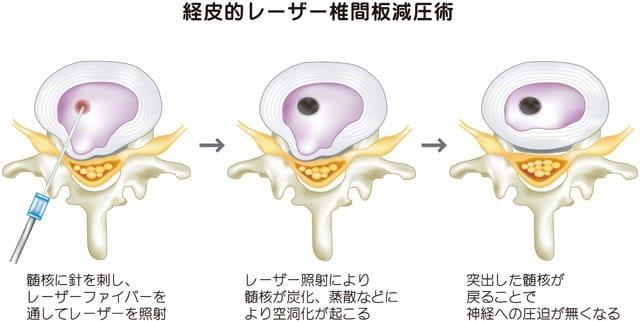 レーザー治療(PL/CDD)の適応のある腰椎/頚椎椎間板ヘルニア