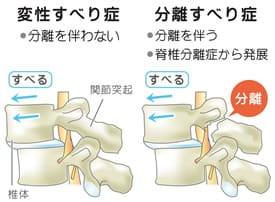 腰椎分離すべり症・腰椎変性すべり症